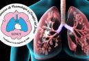 Neumólogos manifiestan preocupación por venta de medicamentos para Covid-19 sin receta