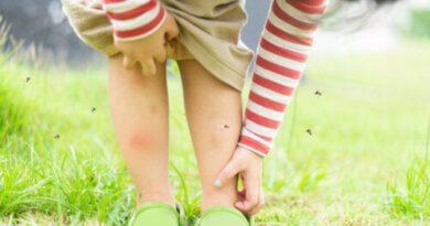¿Cómo diferenciar picaduras de pulgas, de chinches y de mosquitos?