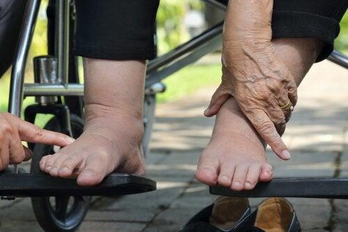 Consejos para cuidar el pie diabético durante el verano