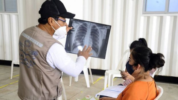 Hombre muestra una placa del tórax a una mujer en Bolivia.
