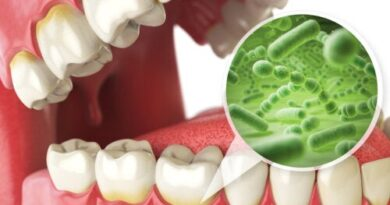 Alimentos que ayudan para mejorar la salud bucal