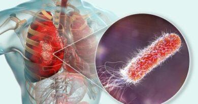 ¿Cómo prevenir el contagio de legionelosis?