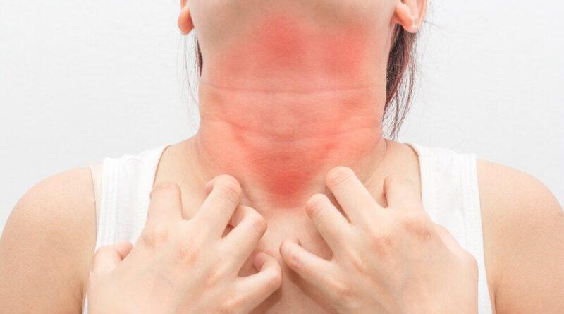 Alergias alimentarias y cómo reducirlas