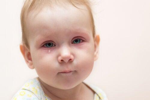 Conjuntivitis en niños: ¿qué debo hacer?