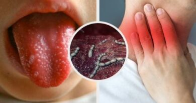 Escarlatina o fiebre escarlata