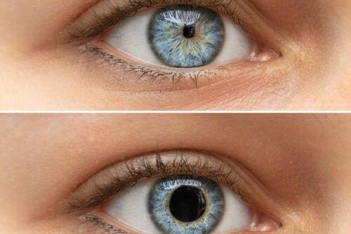 Pupilas puntiformes o miosis: ¿por qué ocurre?