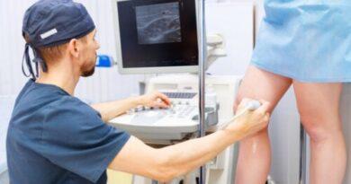 Tratamiento de varices con microespuma