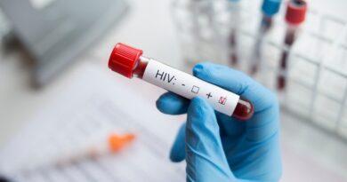 Identificaron una cepa de VIH resistente a todos los antivirales del tratamiento actual