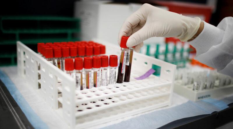 Un científico ruso contrae covid-19 dos veces y asegura que no habrá ninguna inmunidad colectiva