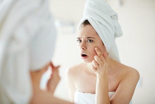 Aceites esenciales para combatir el acné