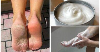 Remedio casero para los callos y los hongos en los pies
