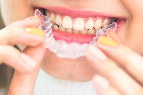 Retenedores dentales: ¿cuándo son necesarios?