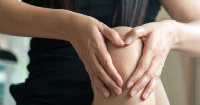 Mixedema: causas, síntomas y tratamientos