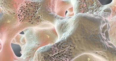 Contusión ósea: causas, síntomas y tratamientos
