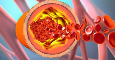 Qué dice la Sociedad Internacional de Trombosis y Hemostasia sobre la vacuna AstraZeneca