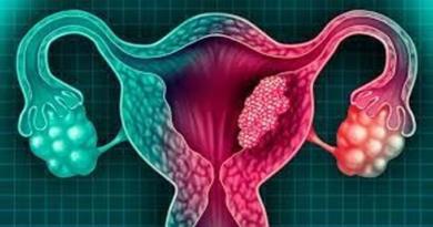 """Sanofi anuncia """"resultados positivos"""" en fármaco contra cáncer de útero"""
