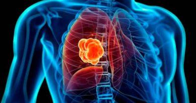 El 90 % de pacientes con cáncer de pulmón muere debido a la detección tardía