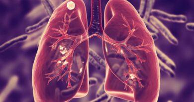 """Día Mundial de la Tuberculosis: """"el reloj no se detiene"""""""