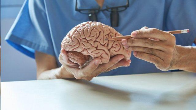 Un médico sosteniendo un cerebro