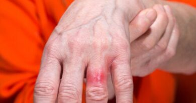 Alergia al níquel: causas, síntomas y precaución