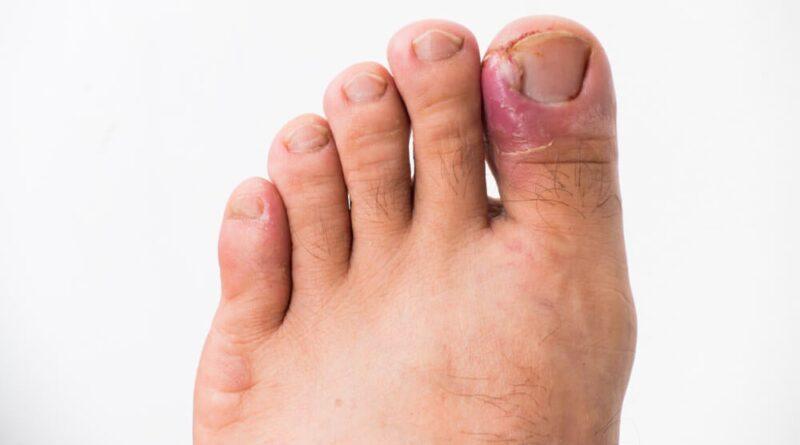 Maneras de prevenir una infección por hongo en las uñas