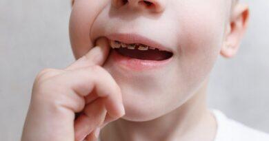 Principales problemas dentales en niños
