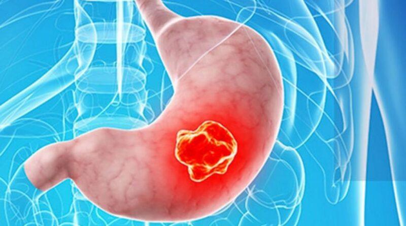 FDA aprueba primera inmunoterapia para cáncer gástrico
