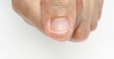 Por qué me salen líneas en las uñas y cómo eliminarlas?