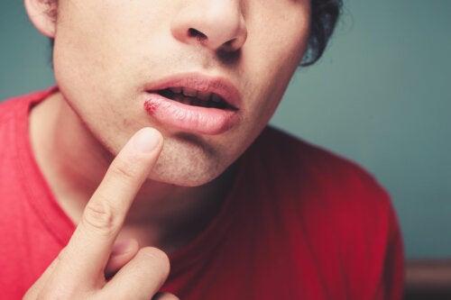 Estomatitis: tipos, causas y tratamientos