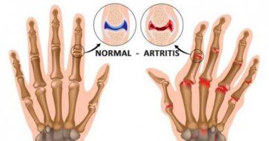 Cosas que probablemente no sabías de la artritis
