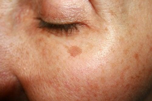 Tienes manchas en la piel? estos 6 remedios caseros te ayudarán a reducirlas