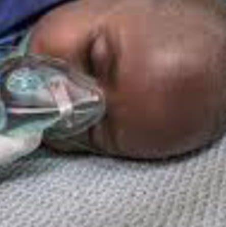 ATENCIÓN: Pediatras alarmados por alta incidencia de neumonía infantil