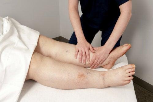 Edema linfático o linfedema: todo lo que debes saber