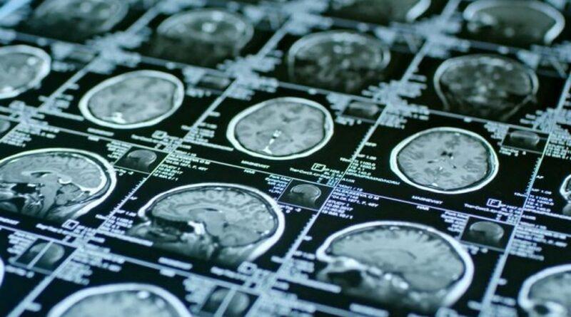 Por qué los científicos creen que el COVID-19 causa pérdida del tejido cerebral a largo plazo