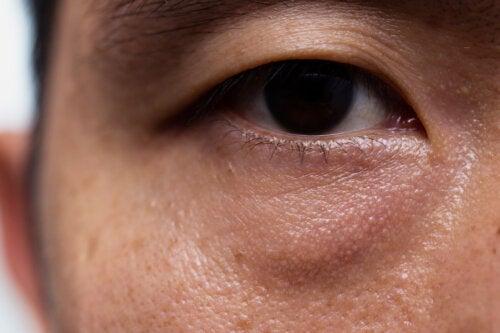Ptosis o párpado caído: causas, signos y tratamientos