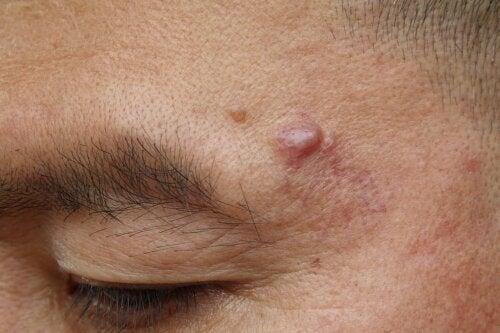 Protuberancia dura debajo de la piel: ¿a qué se debe?