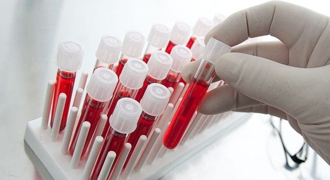 Gobierno se compromete a eliminar el pago del tamizaje a la sangre