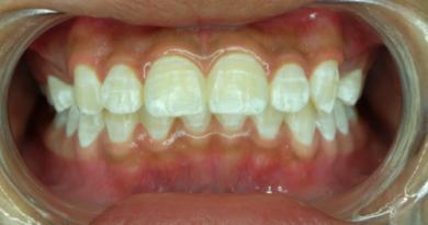 Manchas blancas en los dientes: ¿por qué aparecen?