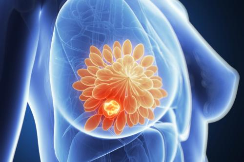 ATENCIÓN: Contra el cáncer de mama, una nueva vacuna logró detener la enfermedad en una paciente